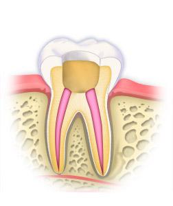 หากท่านมีอาการปวดฟัน แบบปวดฟันมาก ๆ ปวดฟันตอนกลางคืน และถ้าดูแล้วเนื้อฟันไม่ได้เสียหายมาก ไม่ต้องถอนฟันออกนะคะ สามารถรักษารากฟันให้หายปวดฟันได้ค่ะ