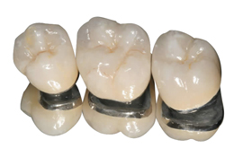 2. ครอบฟันเซรามิกผสมโลหะ